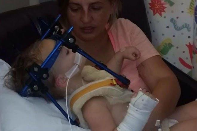 Toddler with car crash injuries
