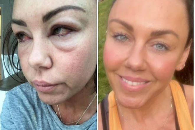 Two selfies of the same woman