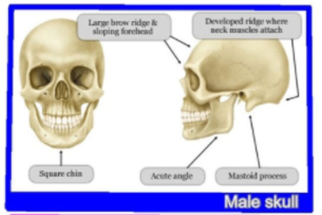 Boy skull theory example