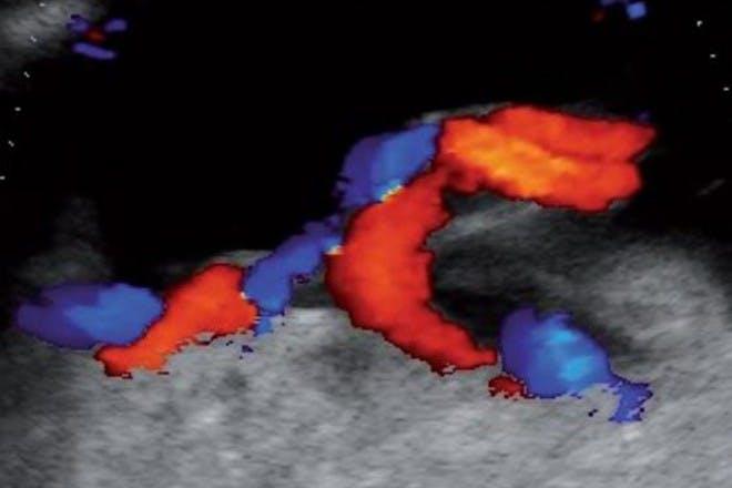 19 weeks pregnant scan