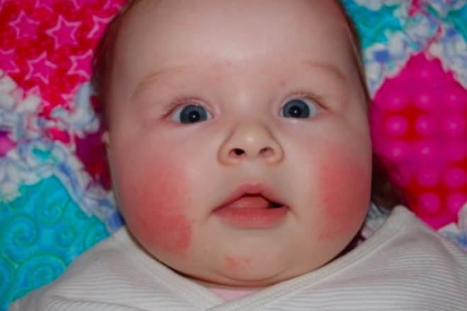 20. Teething rash
