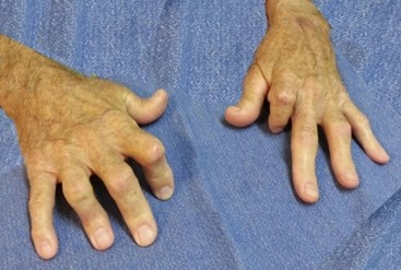 Psoriatic Arthritis Hands links to Are You At Risk?