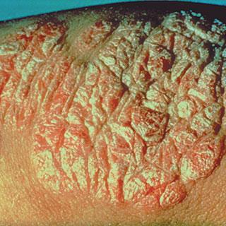 Psoriasis és szürke