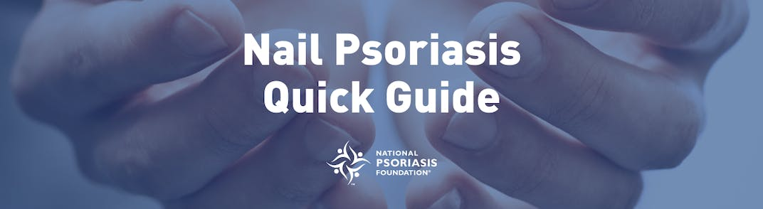 Image of hands and nails with text Nail Psoriasis Quick Guide