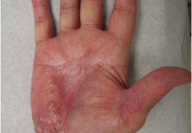 Pustular psoriasis on the hand, found on the Symptoms section of the page.