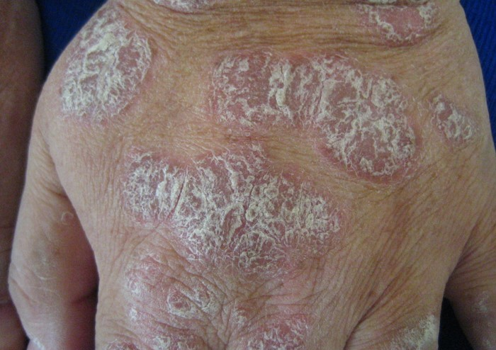 A man with plaque psoriasis on his back, links to Treatment and Care
