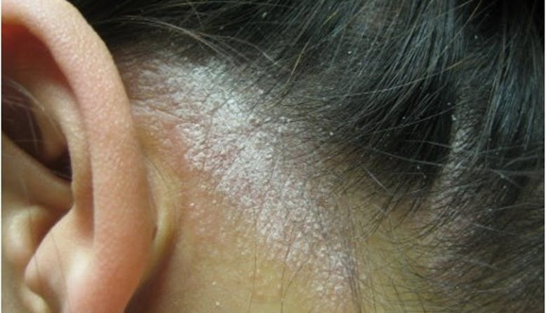 Scalp psoriasis image, courtesy of Amit Garg, M.D., above link to scalp psoriasis page