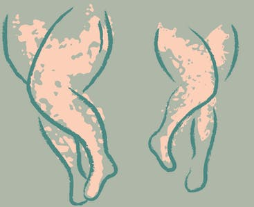 An illustration of two pairs of legs with splotches to represent psoriasis.