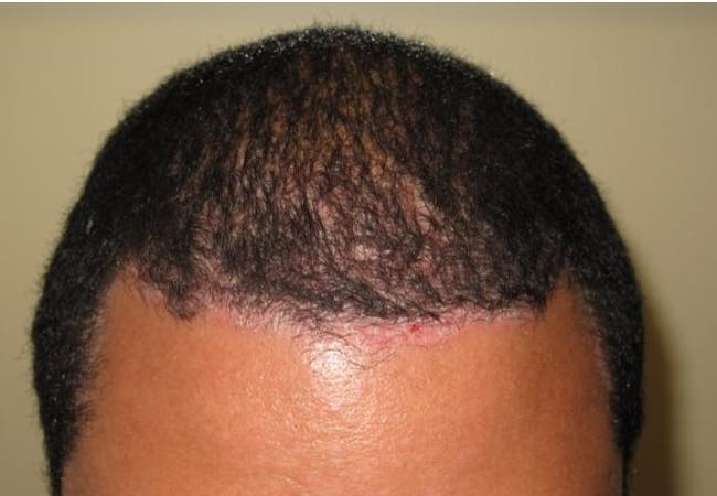 Scalp psoriasis image, skin of color, courtesy of Amit Garg, M.D.