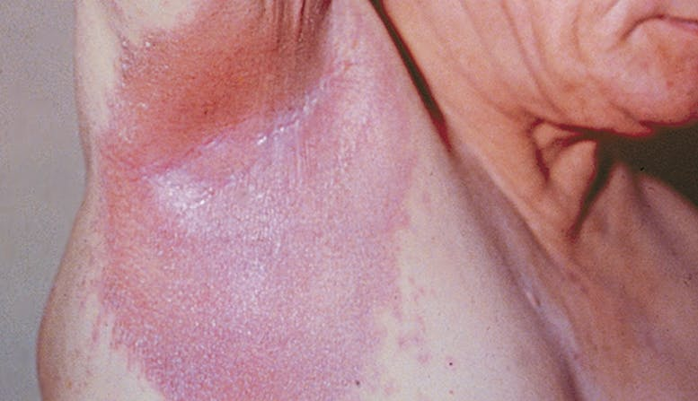 what is genital psoriasis)