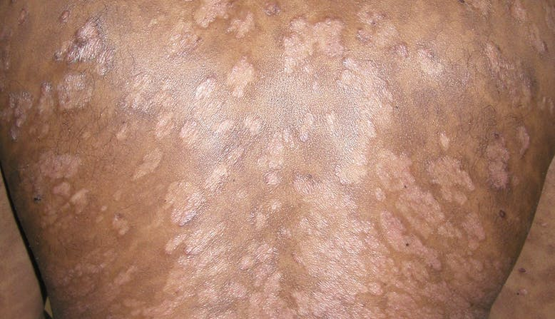 Skin of Color link, Image of a guttate psoriasis on a person's back