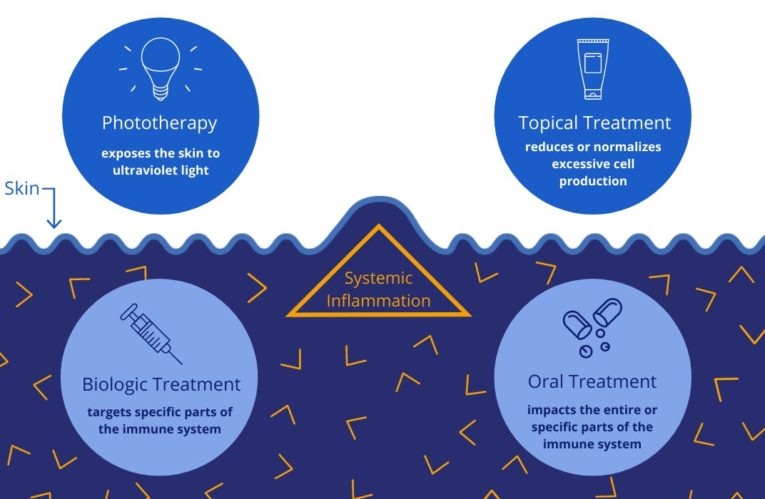 Graphic of treatment options - includes phototherapy, topical treatments, biologic treatments and oral treatments.