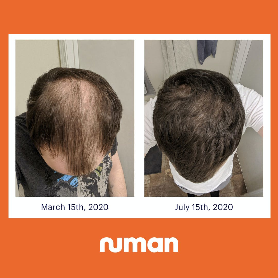 Numankind David S 5 Month Hair Regrowth Story