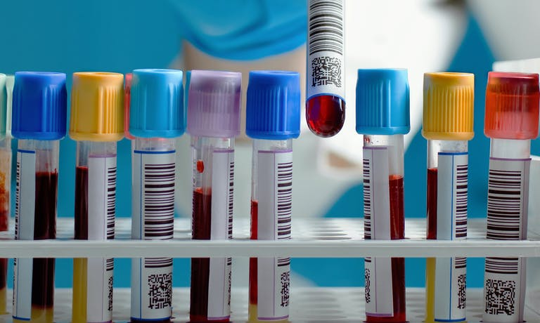 What causes errors in blood test results?