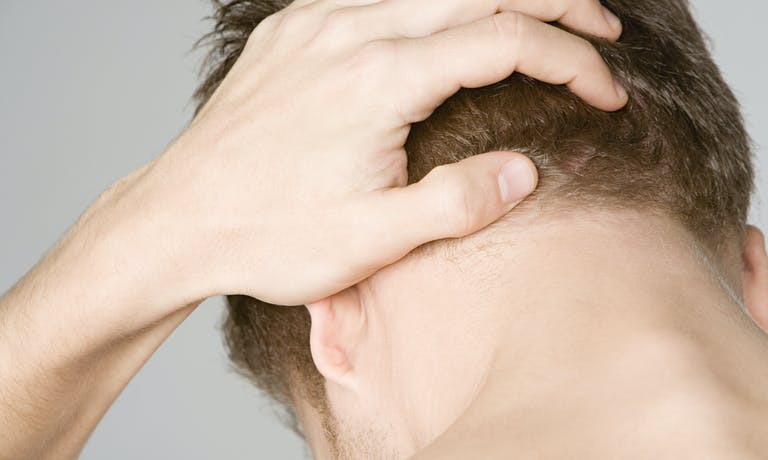 What are the most common causes of hair loss?