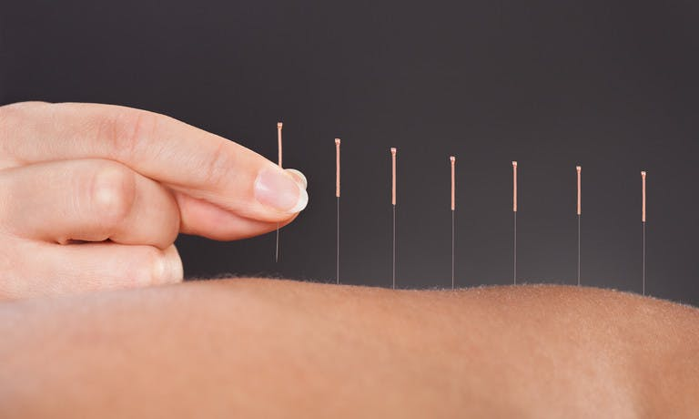 A complete guide to acupuncture for erections