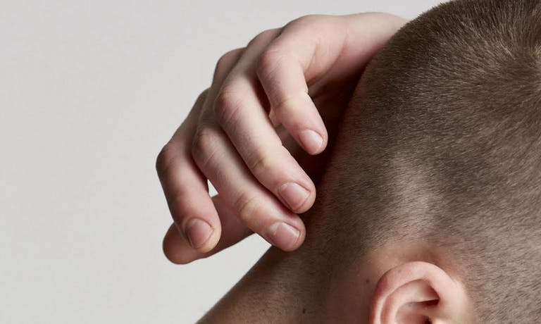 Why do some young men experience hair loss?
