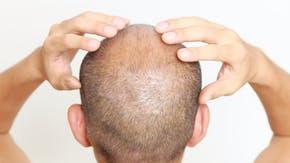 Do hair loss medications have side effects?