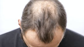 What if minoxidil doesn't work for me?