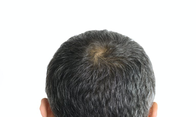 The 3 most common types of alopecia