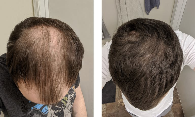 David's 5-month hair regrowth story