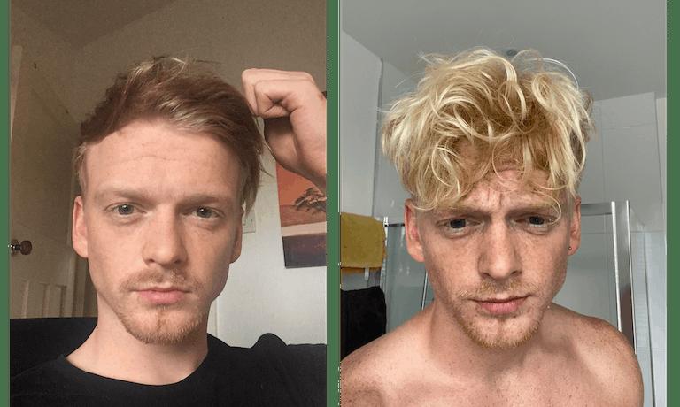 Thomas' hair regrowth story