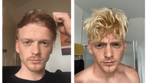 Thomas' hair regrowth story