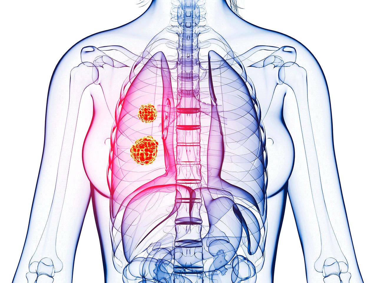 New Robotic Diagnosis Tool Targets Lung Cancer
