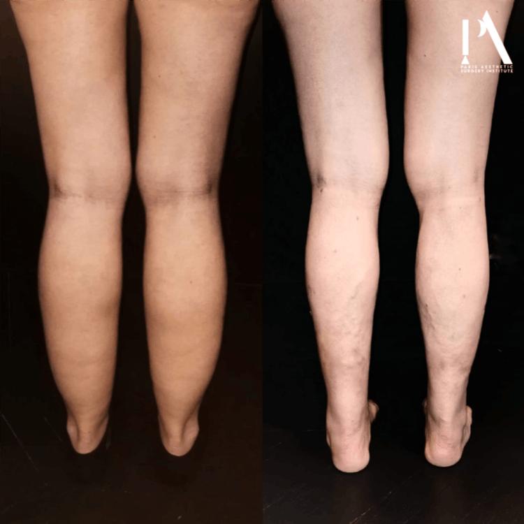 liposuccion WAL avant-après Dr Nicolas Zwillinger Paris - Lipoedeme ou jambes poteaux