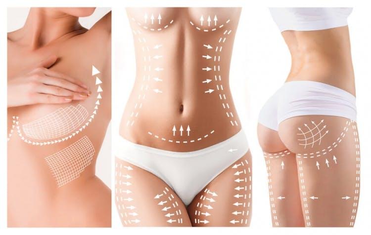 Cirugía estética en el cuerpo