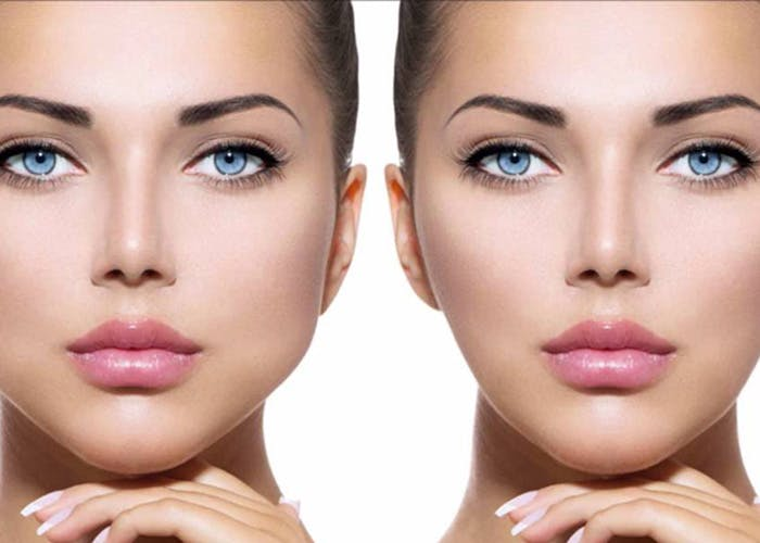bichectomía antes y después