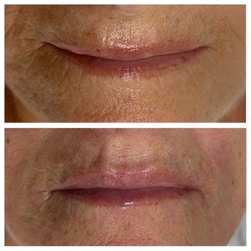 Eliminar arrugas de los labios con ácido hialurónico en Vigo y Pontevedra