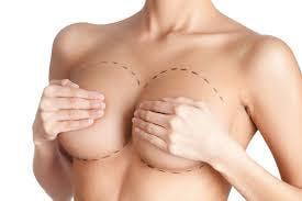 elevación de mamas en vigo y pontevedra: mastopexia