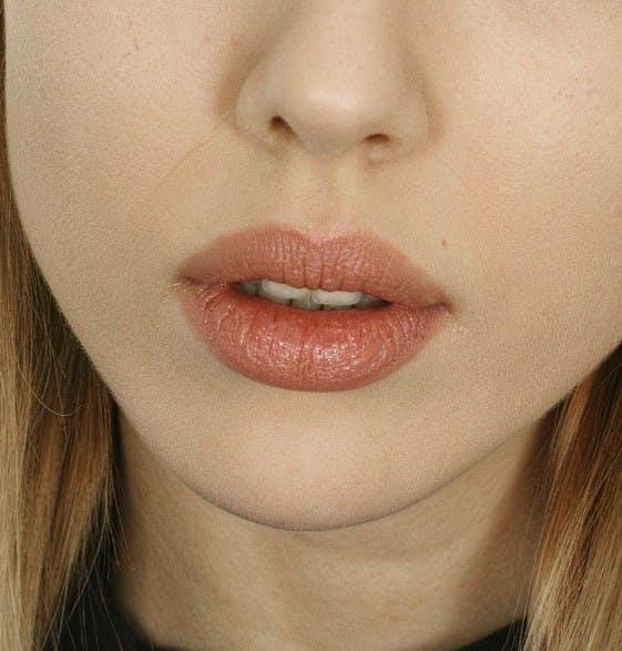Aumento de labios: Una boca atractiva con pequeñas aplicaciones de ácido hialurónico