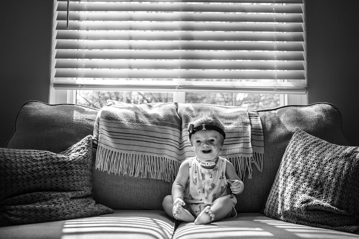 Photograph of young child with Treacher Collins syndrome by documentary photographer Kirsten Lewis
