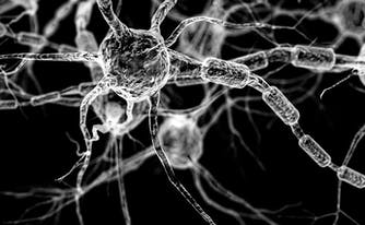 alzheimer's disease and sleep - image of brain neurons