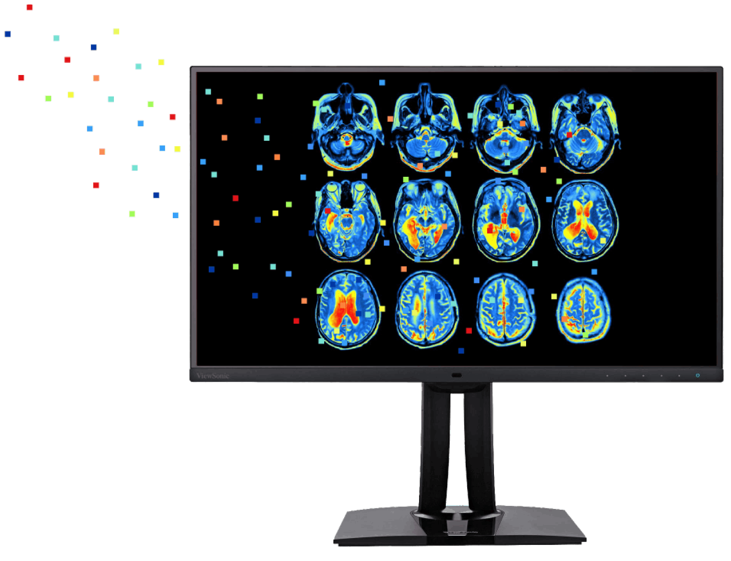 Brain scans, showing glucose levels, that help researchers diagnose degenerative diseases with artificial intelligence.