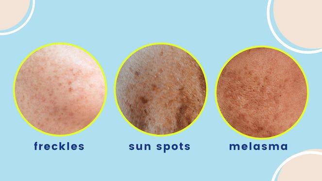 Freckles, Sun spots or Melasma