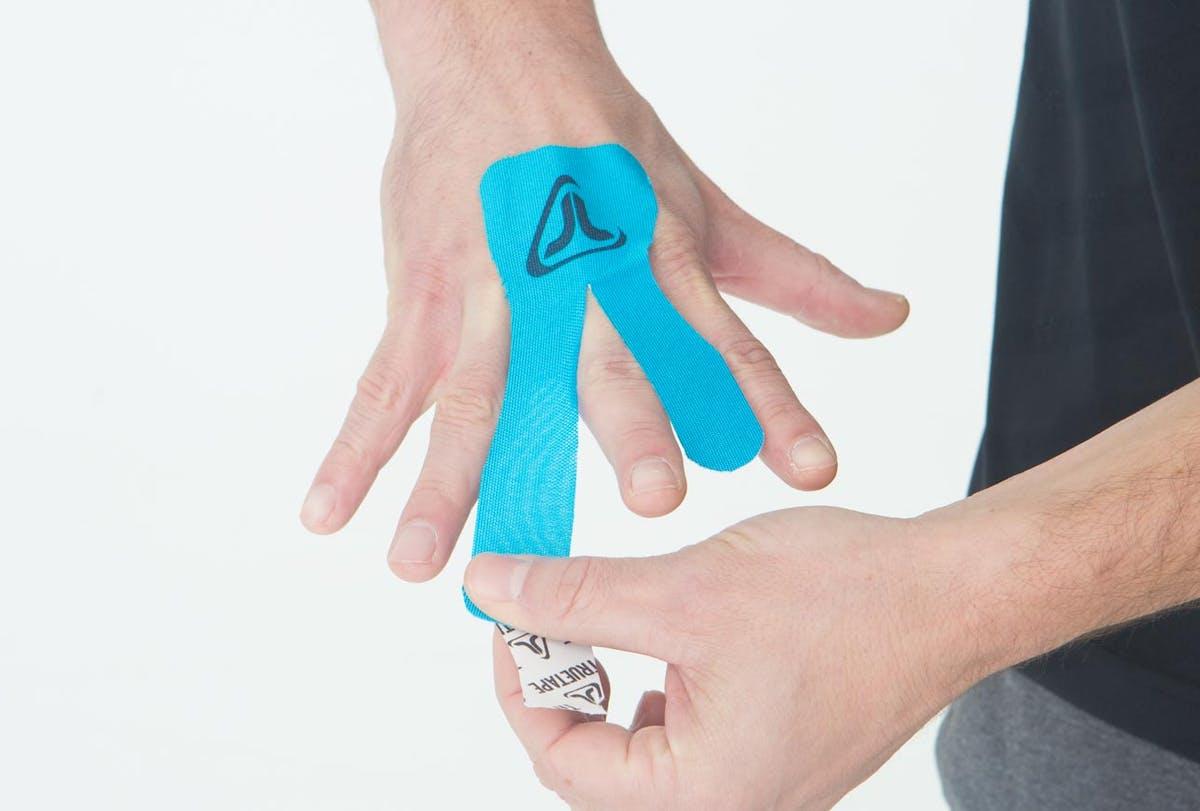 Kapselriss finger Kapselriss operieren