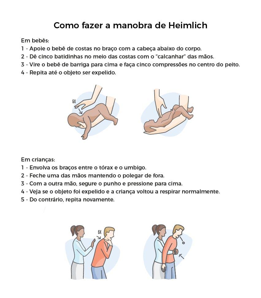 Como fazer a manobra de Heimlich em bebês e adultos