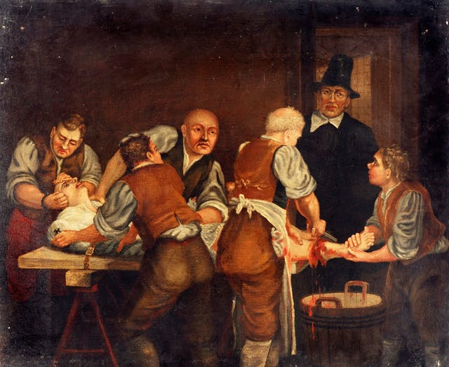 A surgeon performing an amputation of the leg in the seventeenth century
