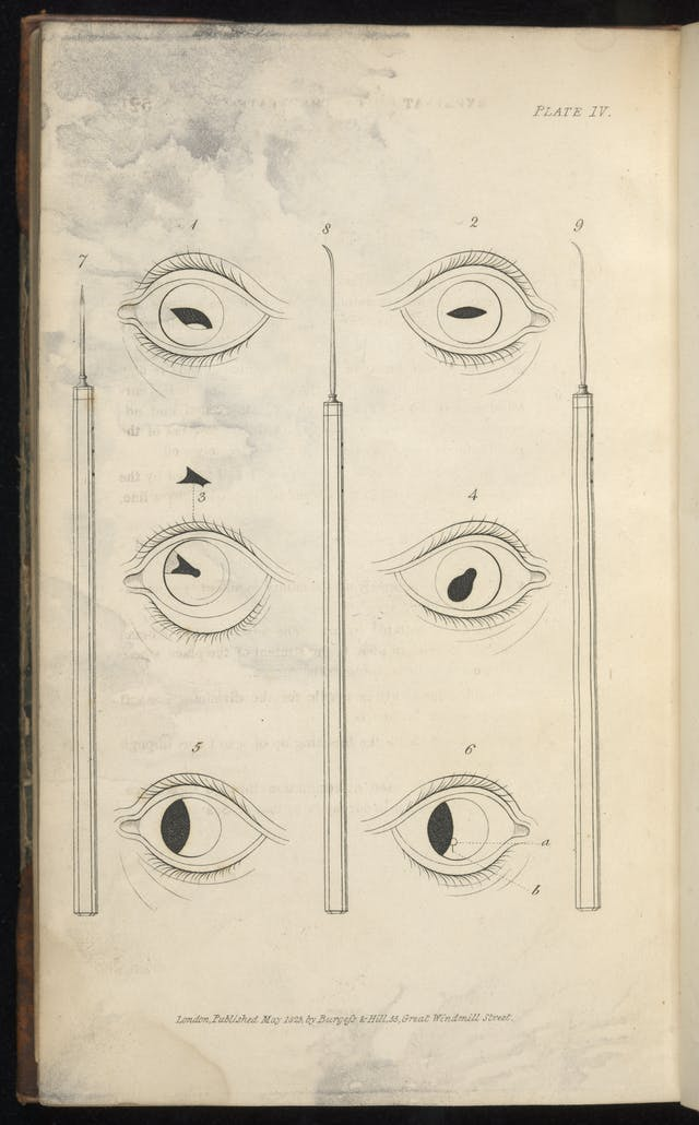 Black and white engraving of eyes illustrating how to make incisions of different types.