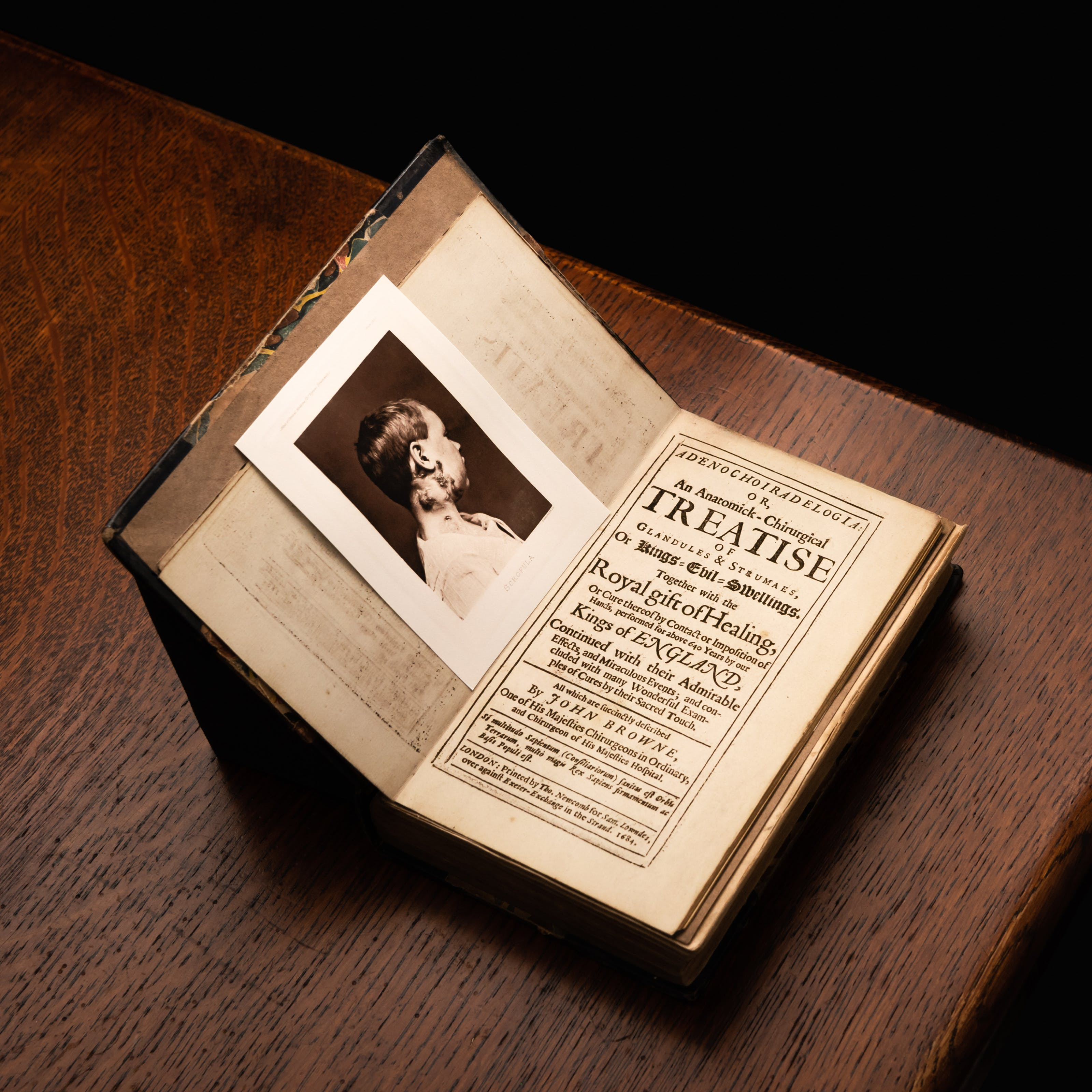 A photograph of a printed book positioned on the corner of a dark wooden table. The book is open at the title page, which reads in part Treatise of Glandules and Strumaes or Kings Evil Swellings. Positioned on the opposite page is photograph of a young boy viewed in profile, running up his neck to below his right ear are darkened swellings.