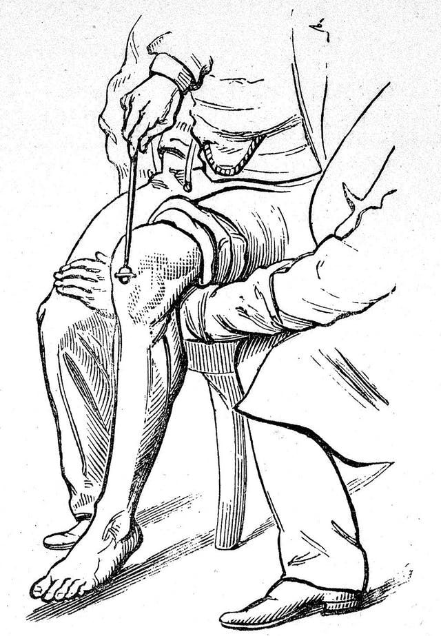 Black and white line drawing of a doctor using a stick to tap a knee of a seated person to test their reflexes.