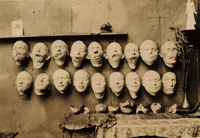 A wall on which are mounted 18 plaster casts of injured faces.