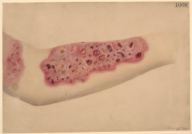 Watercolour drawing showing ulceration of the forearm with lots of red sores.