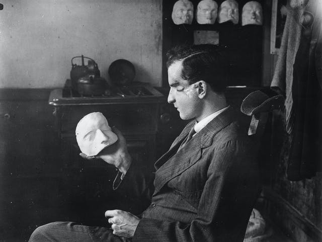 A patient examines a plaster cast of his own face which will be used to conceal the loss of his eye.
