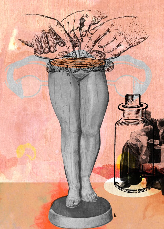 Mixed media digital collage on a pink textured fabric and watercolour background.  In the centre of the image is the  bottom half of a black and white female statue that has been sliced at the midriff with two curved shapes that symbolise the Fallopian tubes.  An etching of a set of hands is seen to operate on the cross section.  In the corner to the bottom right, a man and woman are tending to a woman who appears to have fainted.