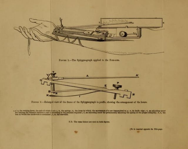 At the top of the page is a sketch of a sphygmograph, a medical instrument used for measuring pulse, tied to a forearm. Below this is a enlarged view of the device, which demonstrates how the levers are arranged.