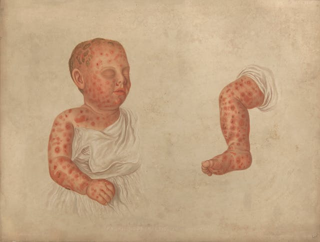 Watercolour of a baby with a skin condition. Red bumps are spread across the face and body.